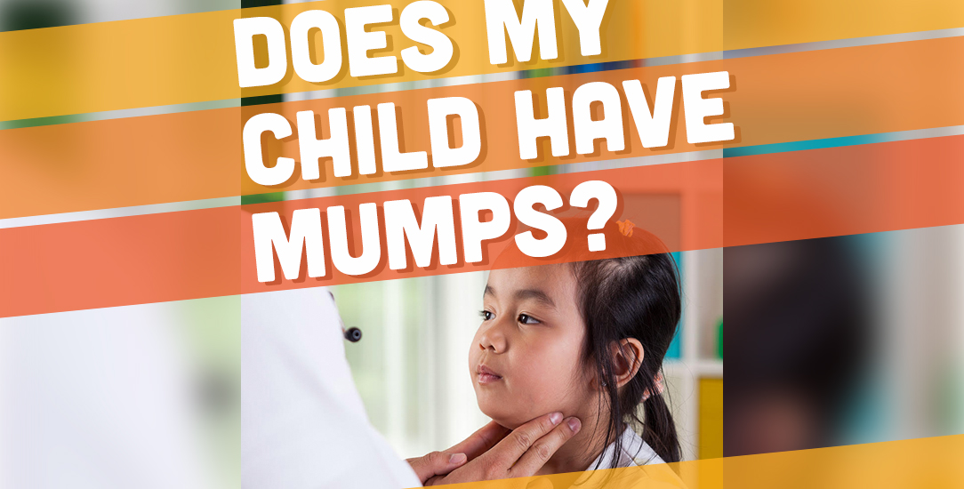 Does My Child Have Mumps?